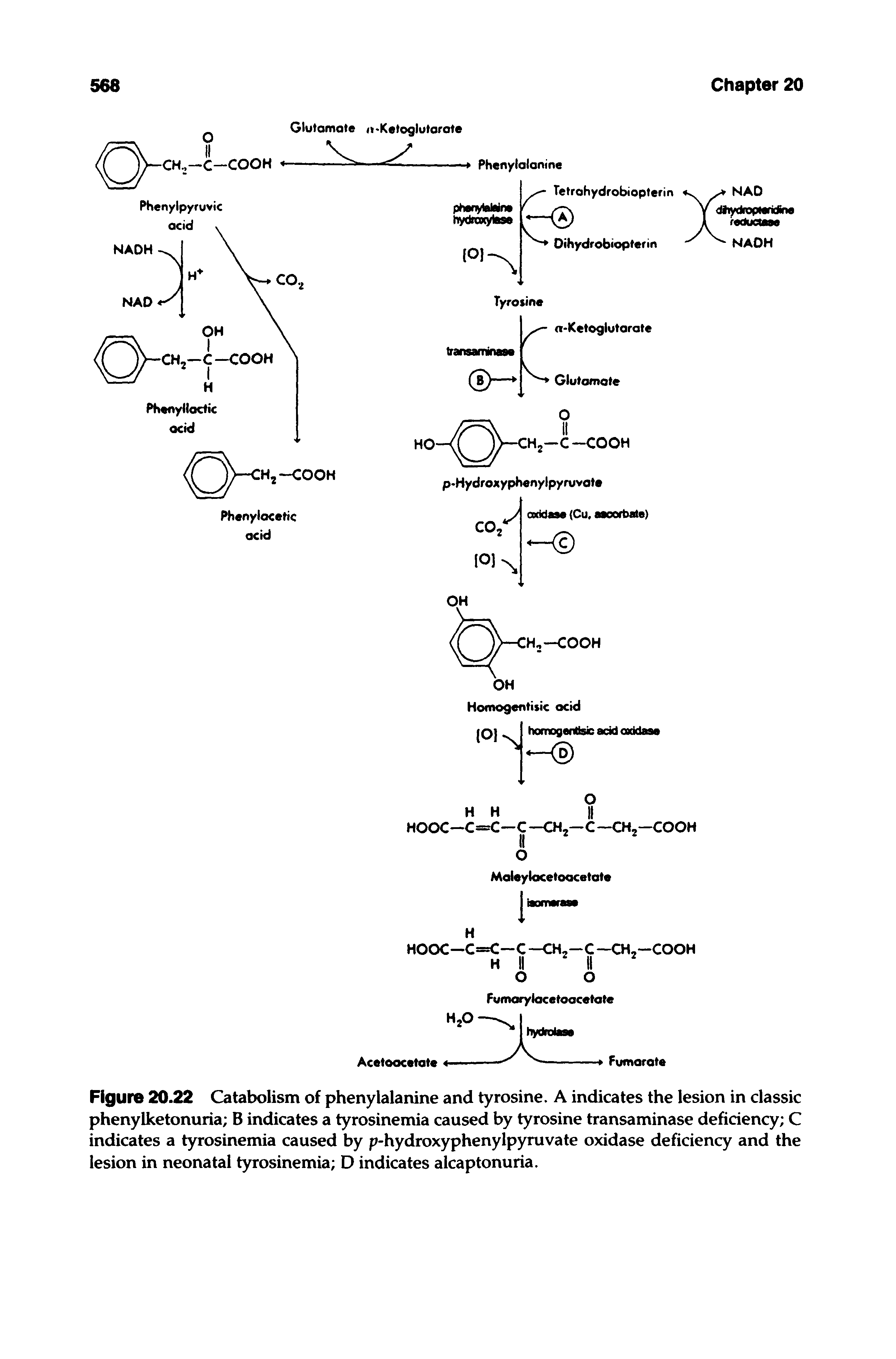 "Figure 20.22 Catabolism of phenylalanine and tyrosine. A indicates the lesion in <a href=""/info/classic_phenylketonuria"">classic phenylketonuria</a> B indicates a tyrosinemia caused by <a href=""/info/transaminases_for_l_tyrosine"">tyrosine transaminase</a> deficiency C indicates a tyrosinemia caused by p-<a href=""/info/p_hydroxyphenylpyruvate_oxidase"">hydroxyphenylpyruvate oxidase</a> deficiency and the lesion in <a href=""/info/neonatal_tyrosinemia"">neonatal tyrosinemia</a> D indicates alcaptonuria."